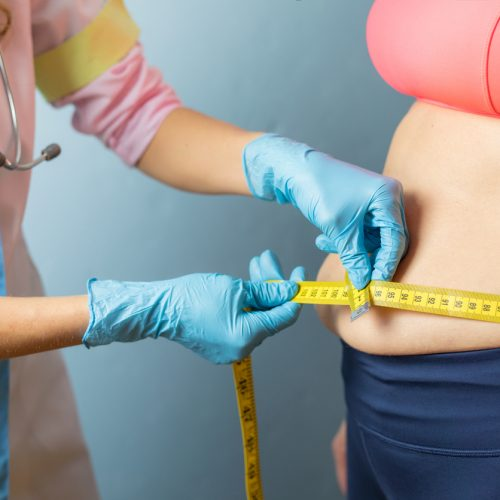 Therapist taking obese woman's body waist measurements